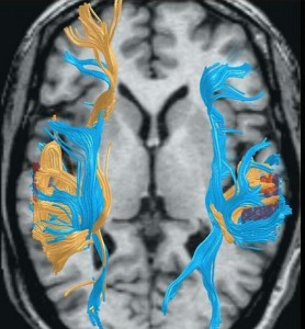 DTI Brain Scan